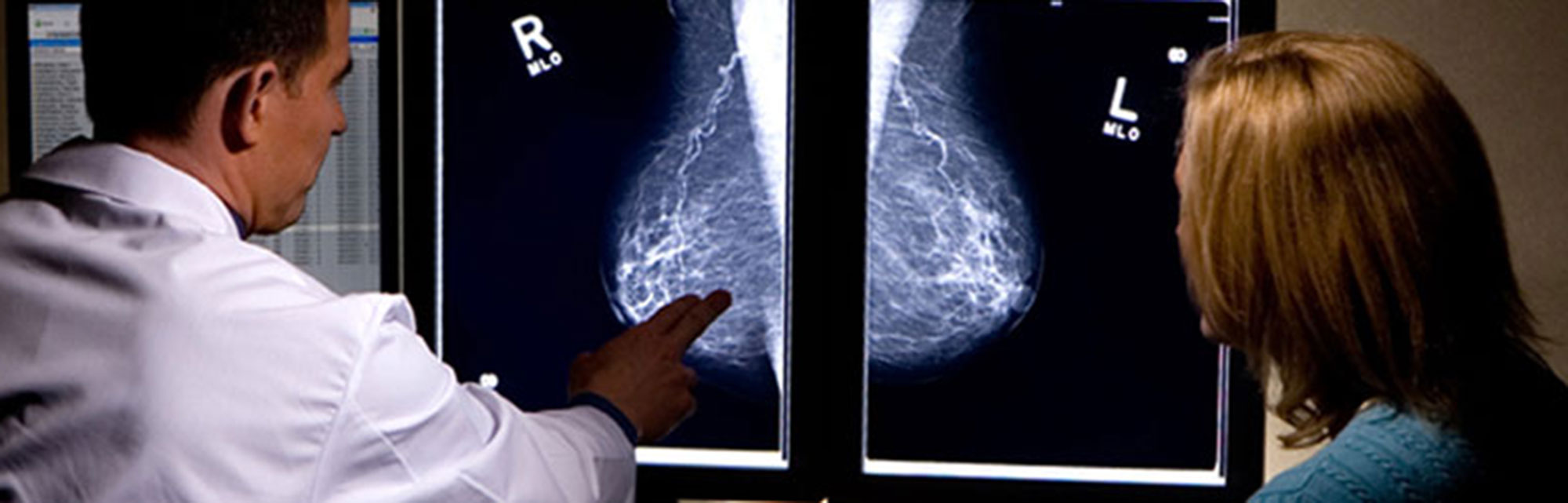 Breast X-Rays